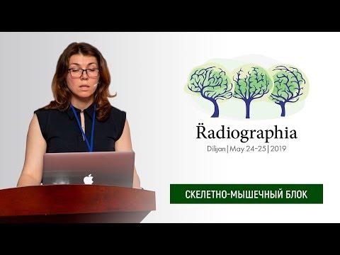 Ольга Блищ. МРТ после эндопротезирования тазобедренного сустава