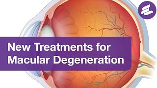 Treatments for Macular Degeneration to Help Preserve Your Vision