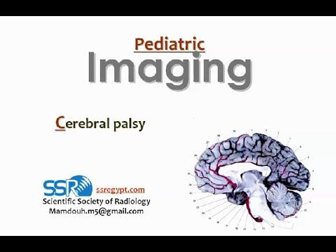 Imaging of cerebral palsy (Jan 2015) - Dr Mamdouh Mahfouz