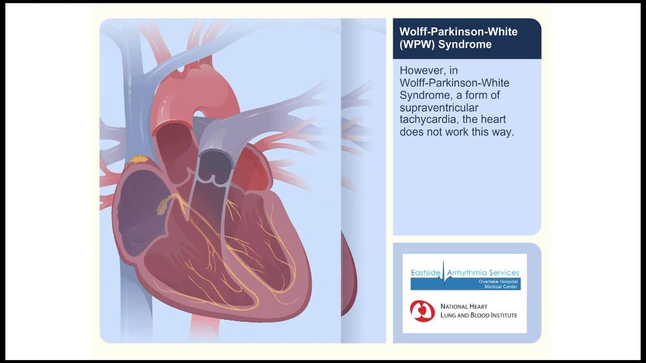 WPW (Wolff-Parkinson-White Syndrome) Animation Video - YouTube