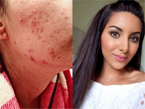 HOW I CURED MY CYSTIC ACNE NATURALLY! | 5 BEST TIPS
