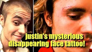 Justin Bieber's Mysterious Disappearing Face Tattoo