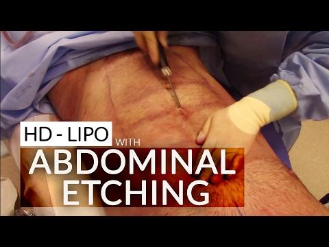 4D VASER Hi Definition Body Sculpting/ Abdominal Etching / Male Six-Pack Liposuction -- See Him FLEX