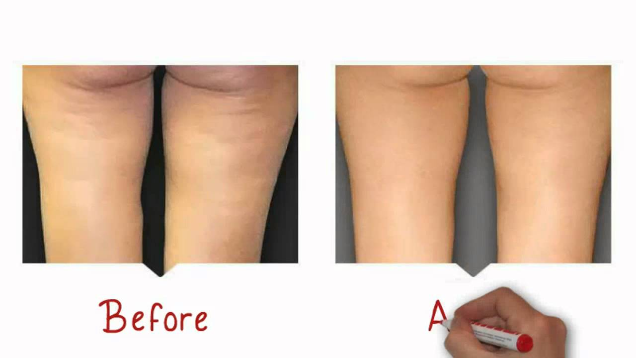Micro needling cellulite before and after