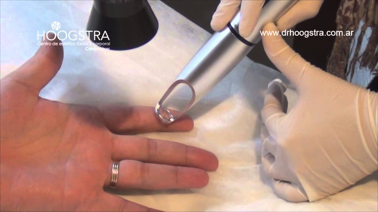 verruga en los dedos dela mano tratamiento