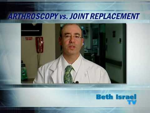 Arthroscopy Vs. Joint Replacement: Mount Sinai Beth Israel Brooklyn