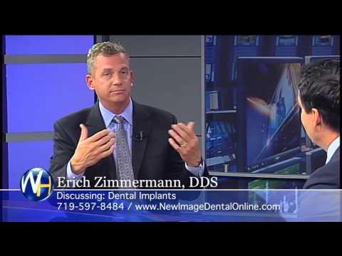 Dental Implants, Colorado Springs, CO Dentist Erich Zimmerman
