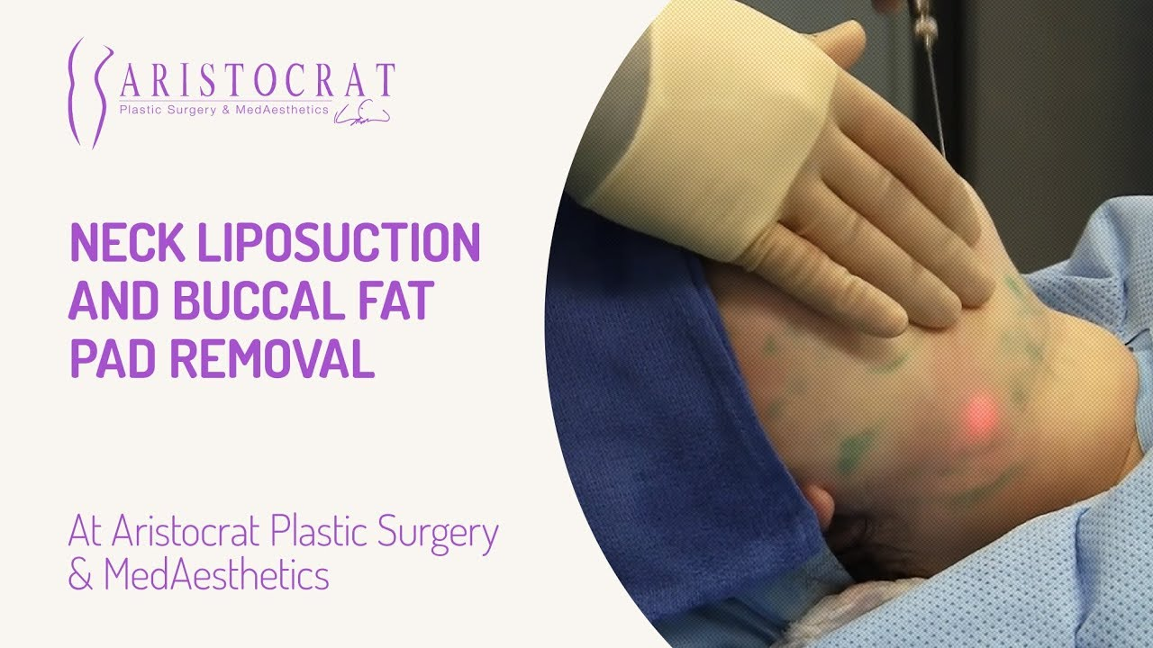 neck liposuction and buccal fat pad removal long island new york