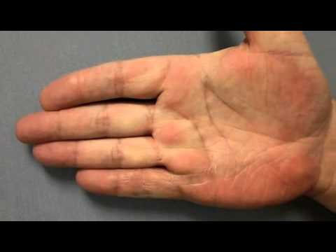 Dupuytren's Contracture & Xiaflex, Before & After Treatment, Video #4 (Dr. Kenty Sian) - YouTube