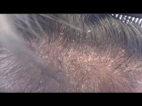 METAL COMB VS SCALP PSORIASIS