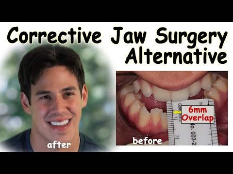 Corrective Jaw Surgery Alternative - Underbite Correction without Surgery