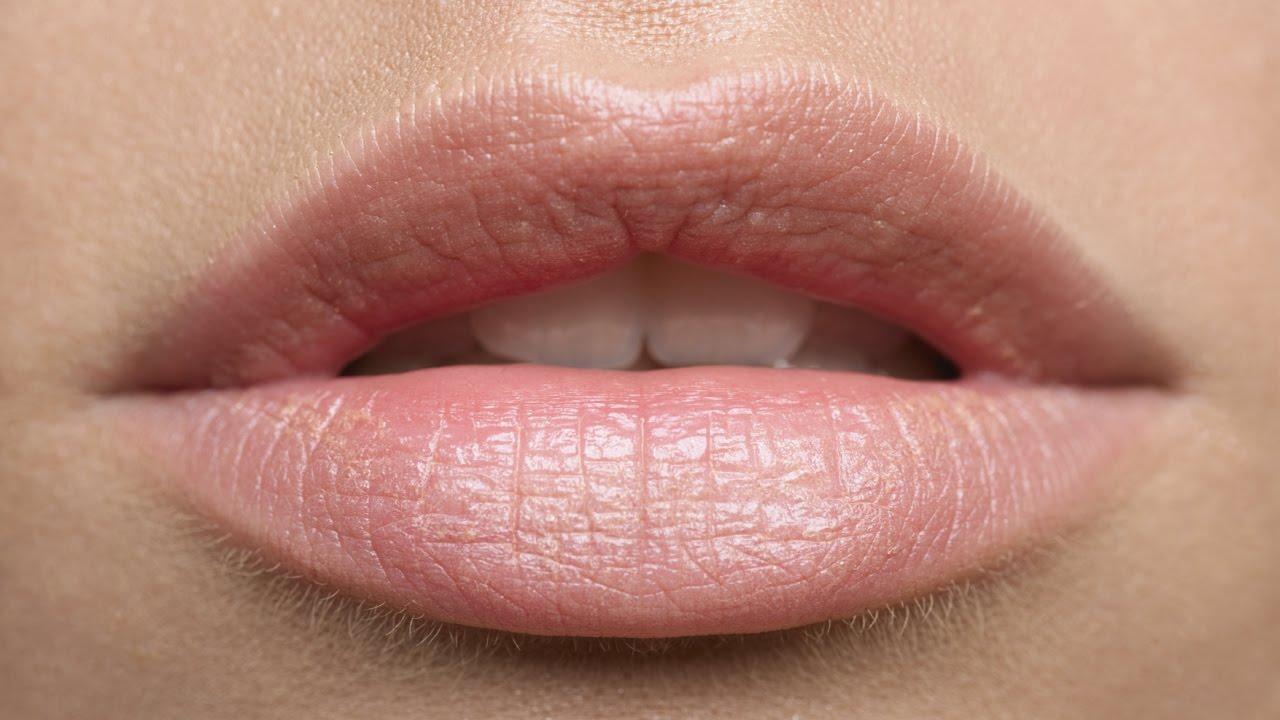 От потрескавшихся губ в домашних условиях
