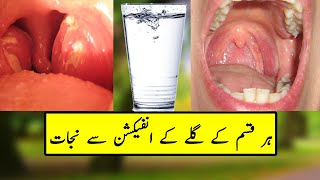 Throat Infection Symptoms - Gale Ke Har Marz Ka Ilaj
