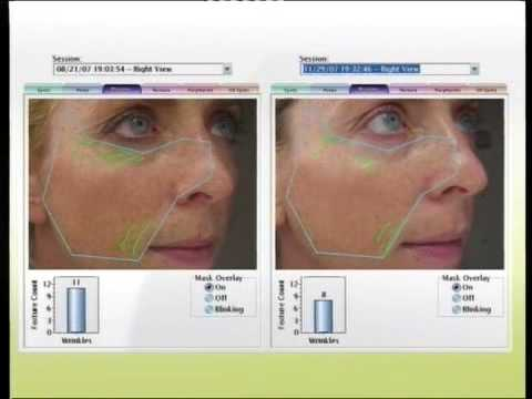 Ultraceuticals Real Visible Results