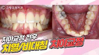 치열/비대칭 치아교정 전후영상_그랑교정치과