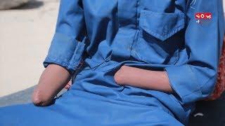 طفل سلبه الحوثيون يديه وقدمه .. لكنهم لم يستطيعوا انتزاع روحه الجميلة .. فما القصة؟ | المرصد الحقوقي