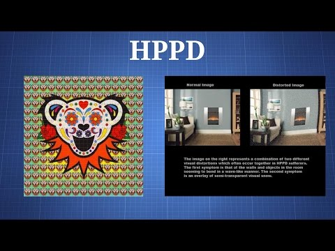 Hallucinogen Persisting Perception Disorder (HPPD) - The
