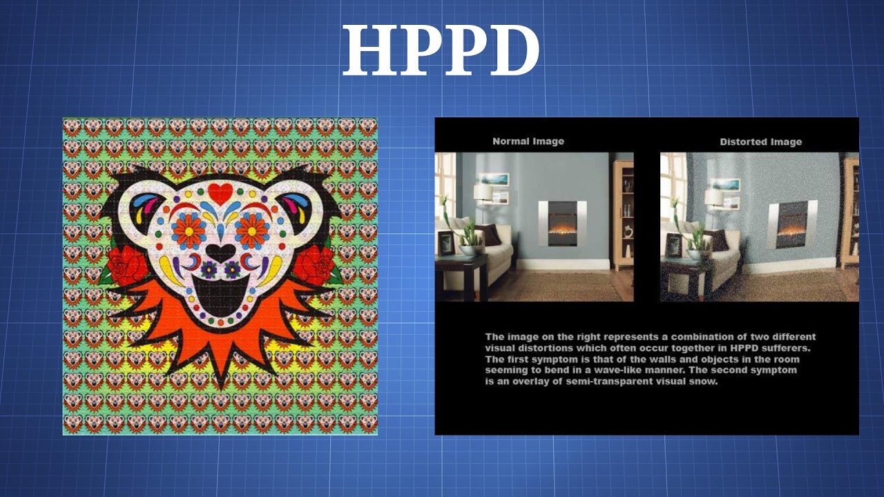 Hallucinogen Persisting Perception Disorder (HPPD) - The Drug Classroom