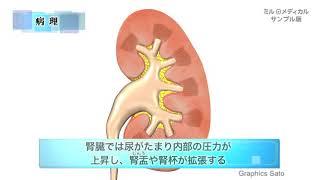水腎症/ミルメディカル 家庭の医学 動画版