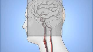 Diagnóstico De La Angiografía Cerebral
