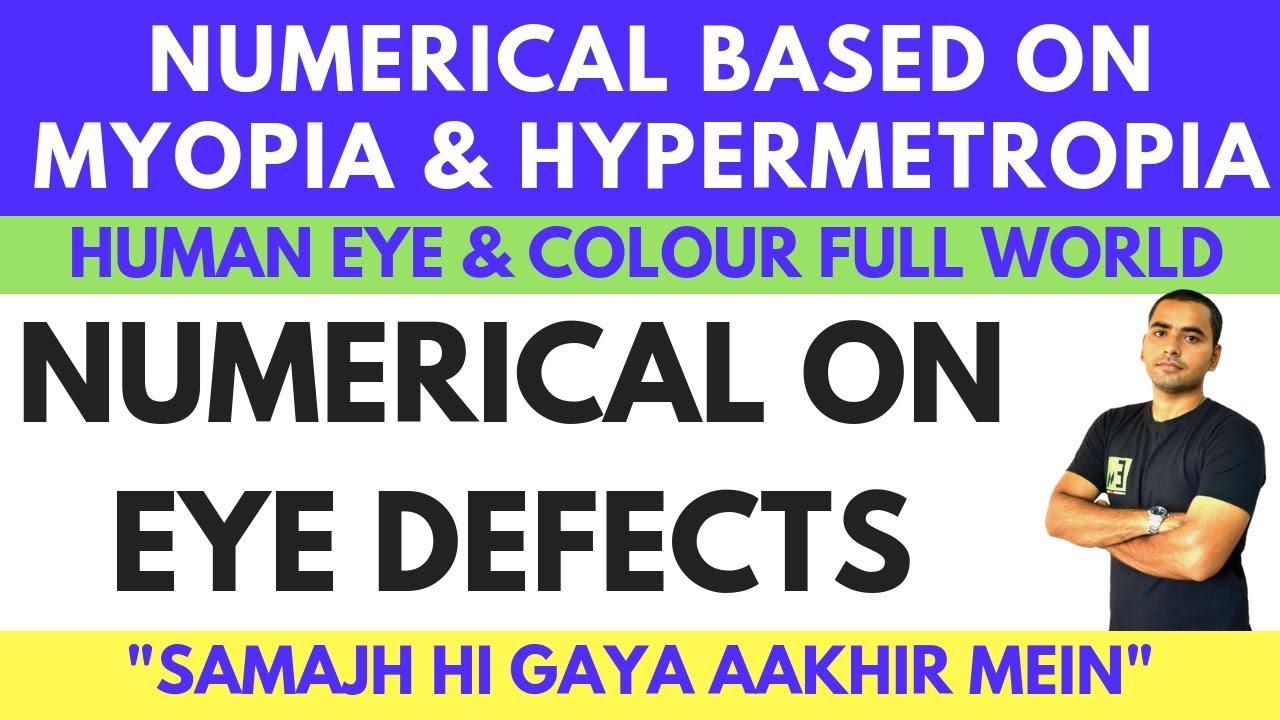miért romlik és javul a látás