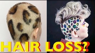 *** New Natural Hair Loss Solution***