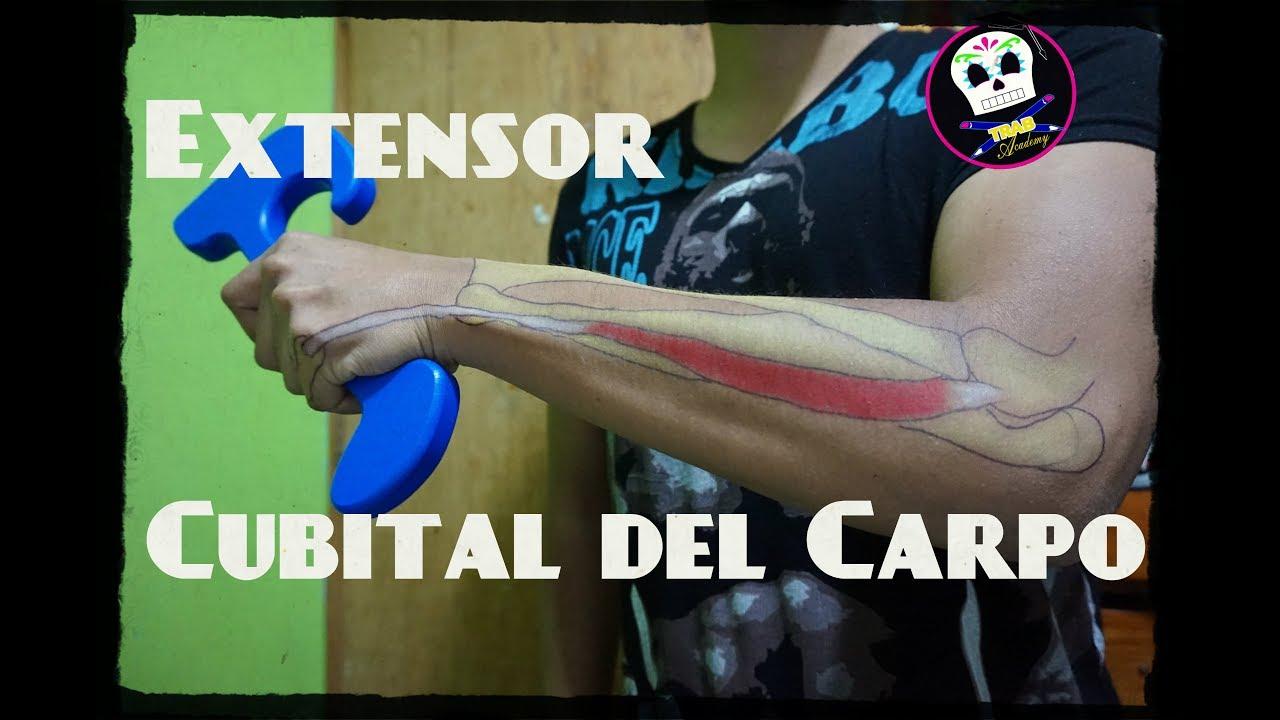 Tendinitis cubital posterior tratamiento