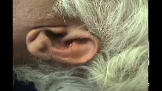 Effective Diabetes Treatment with ear Acupuncture