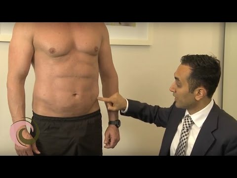 Sculpting a 6 Pack and Ripped Chest  |  Dr. Joseph Ajaka explains Hi Def Vaser Liposuction