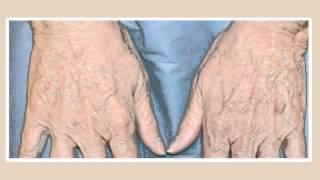 Пигментные  пятна - лечение в клинике Goravsky Киев(Пигментные пятна - мелазма, хлоазма, солнечное лентиго - распространенные нарушения пигментации кожи, с..., 2013-03-03T13:14:33.000Z)
