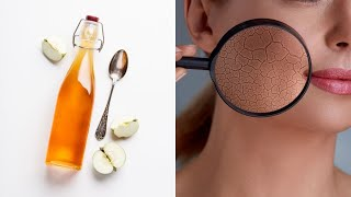 Health Benefits of Apple Cider Vinegar | Healthy Living Tips