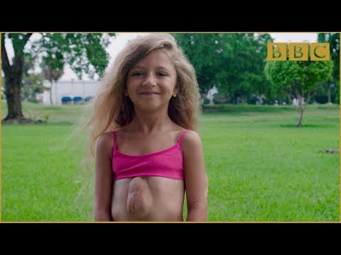 The girl born with heart outside her chest - Incredible Medicine: Dr Weston's Casebook Preview - BBC