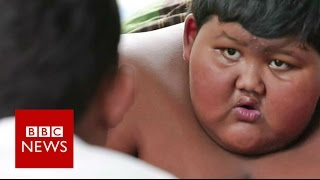 'My 10-year-old son weighs 188kg' - BBC News