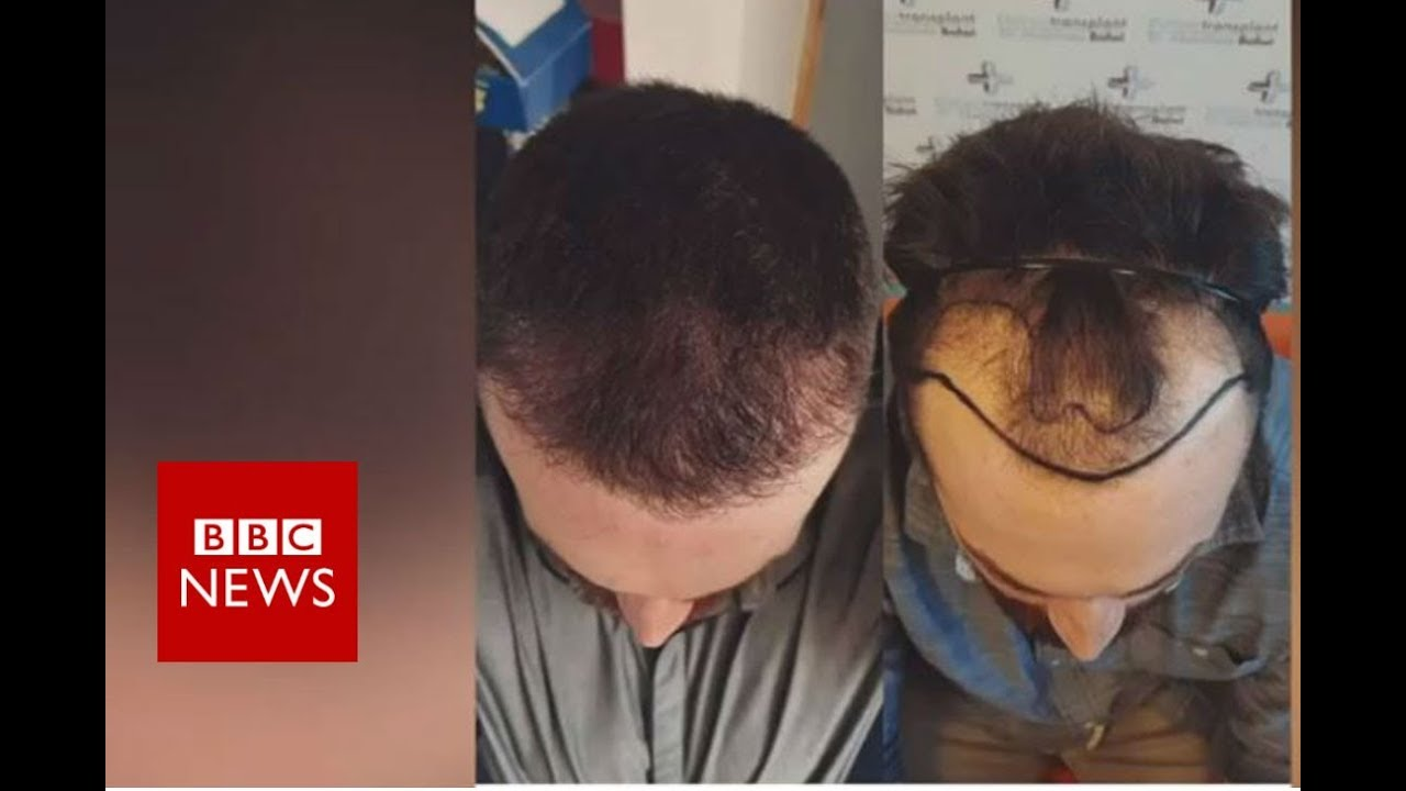 Hair loss: Fighting against my receding hairline - BBC News