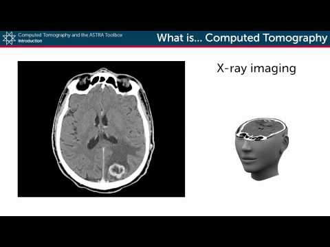 What is Computed Tomography?