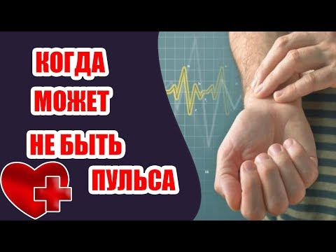 Может ли отсутствовать пульс у живого человека? Пульс у человека отсутствует!