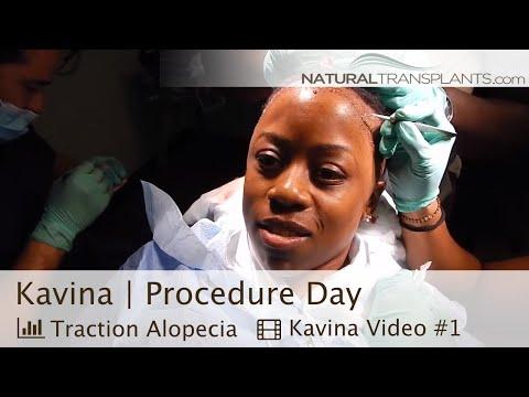 African American Hair Transplant | Hair Transplant Women (Kavina)