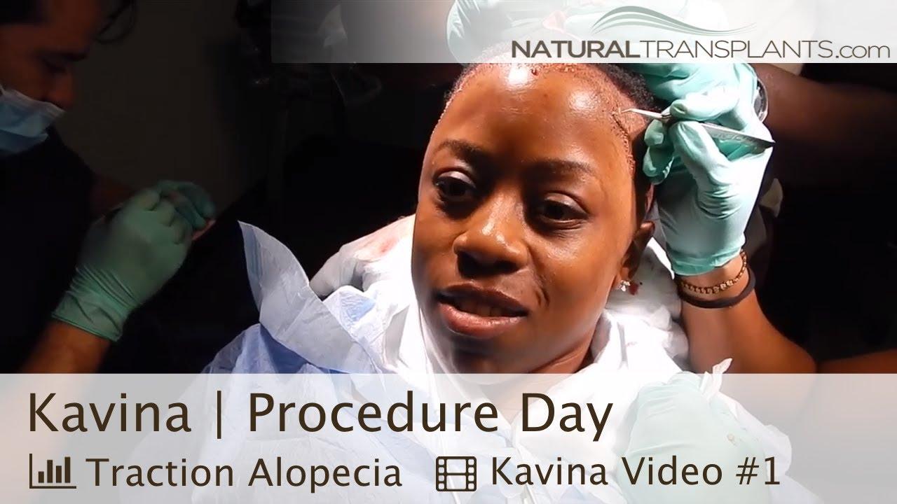 African American Hair Transplant   Hair Transplant Women (Kavina)