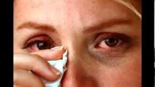 Remedios caseros para el cansancio ocular y ardor ocular | Tratamientos naturales para los ojos