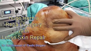Huge Hernia Repair Surgery Hybrid Hernioplasty Dr Sumeet Shah
