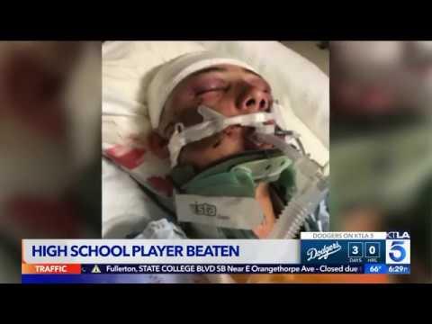 San Pedro High School Baseball Player 'Beaten Beyond Recognition'