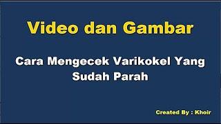 Video dan Gambar Contoh Hernia Bukan Varikokel Sembuh dengan Pijat Reposisi Saraf 10 adalah sebuah p.
