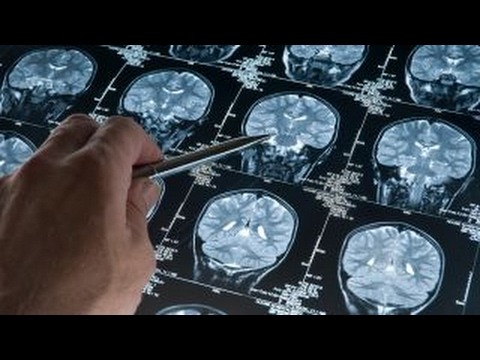 Scientists can now predict age Alzheimer's disease sets in