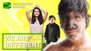 We Are Different. What it`s like to Be Special | RT Documentary