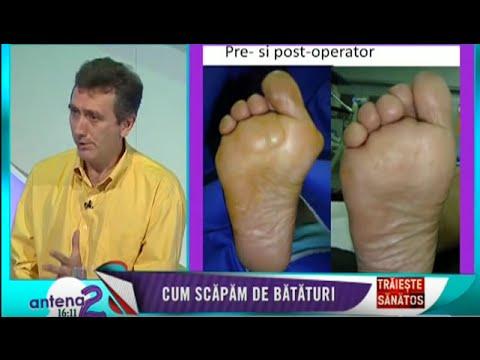 Lipitoare vene varicoase pun puncte pe picior