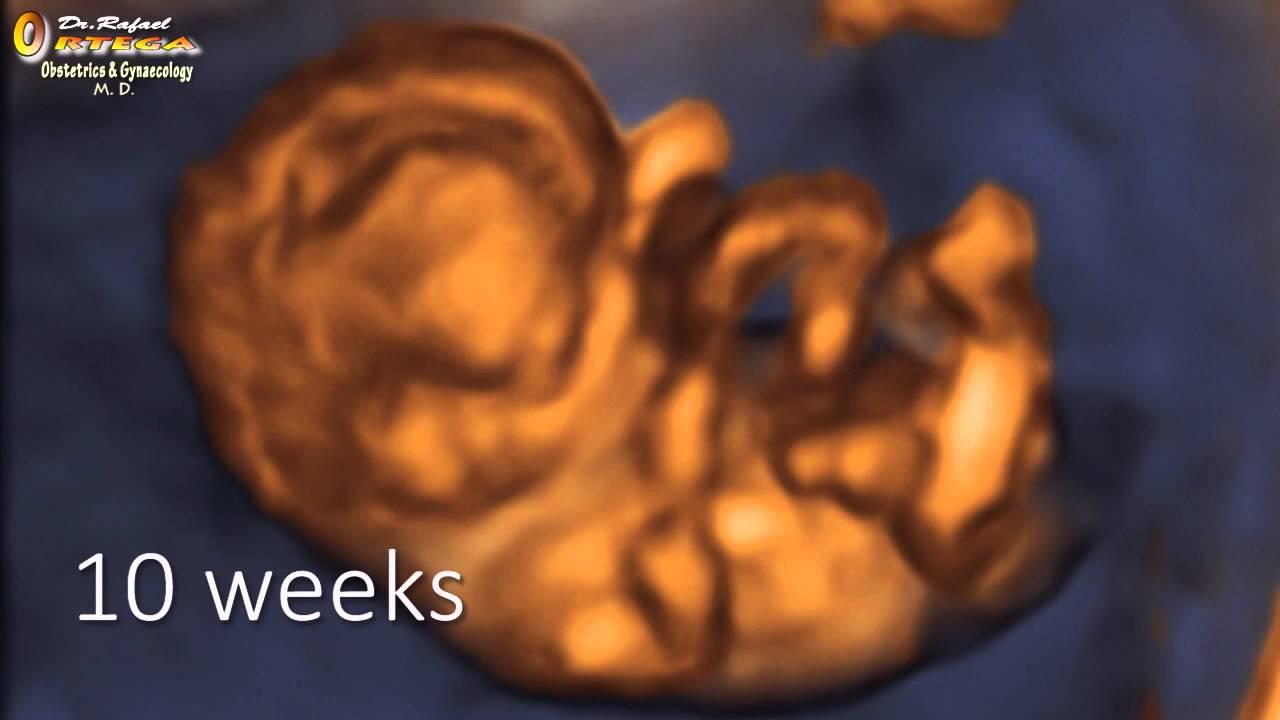 feto com 10 semanas de gestacion