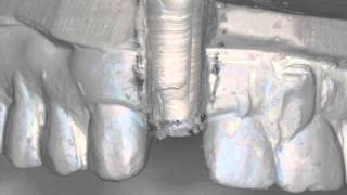 Implant Case #7 - Dr. Tarun Agarwal, Part 4: Prosthetic lab prep.