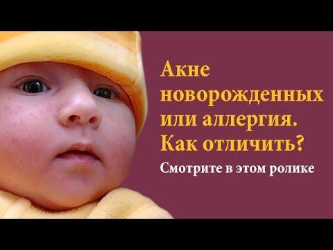 Наконец-то Вы сможете отлечить - Акне новорожденных от аллергии.