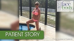 Crystal's Patient Story - Body Contouring After Weight Loss Surgery - Dr. Ortega | Melbourne, FL
