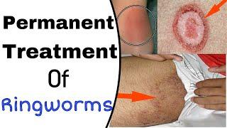 Permanent Treatment Of Ringworm ( Daad, khaj, kujhli )